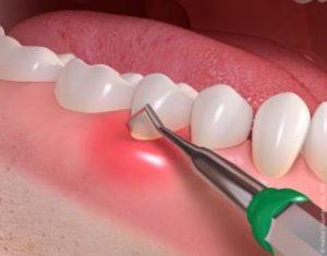 Gum_disease_treatment_02-300x235