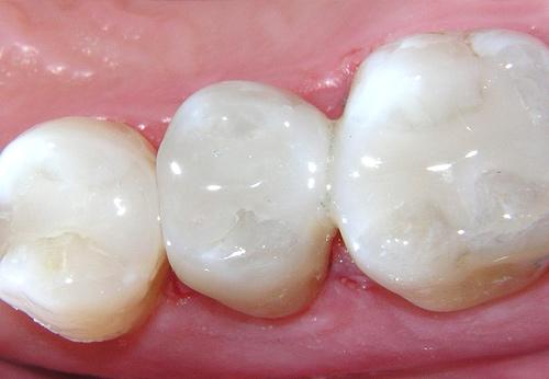 white-fillings-milton-keynes