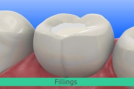 fillings1
