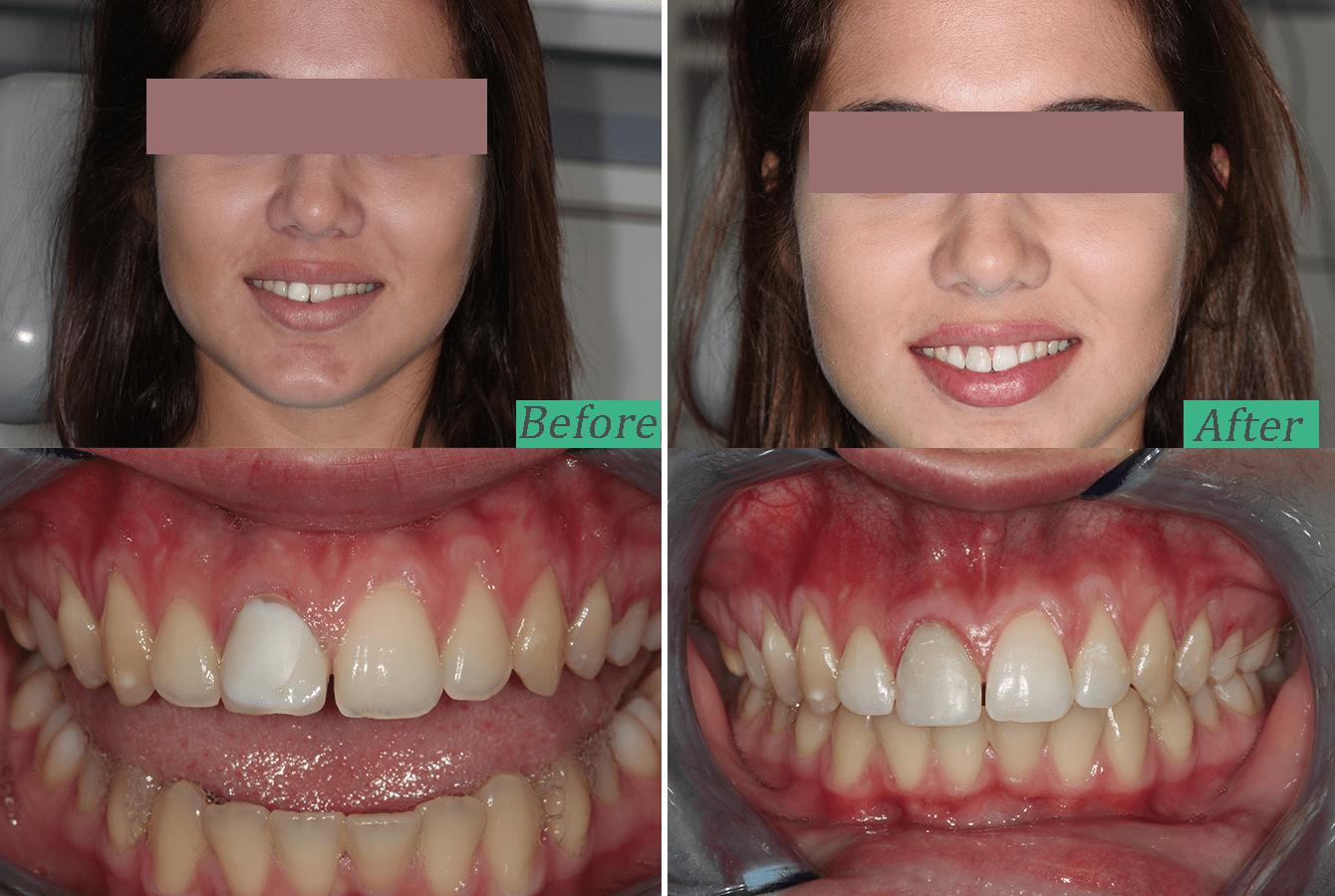 change of old composite veneer to enhance smile aesthetics